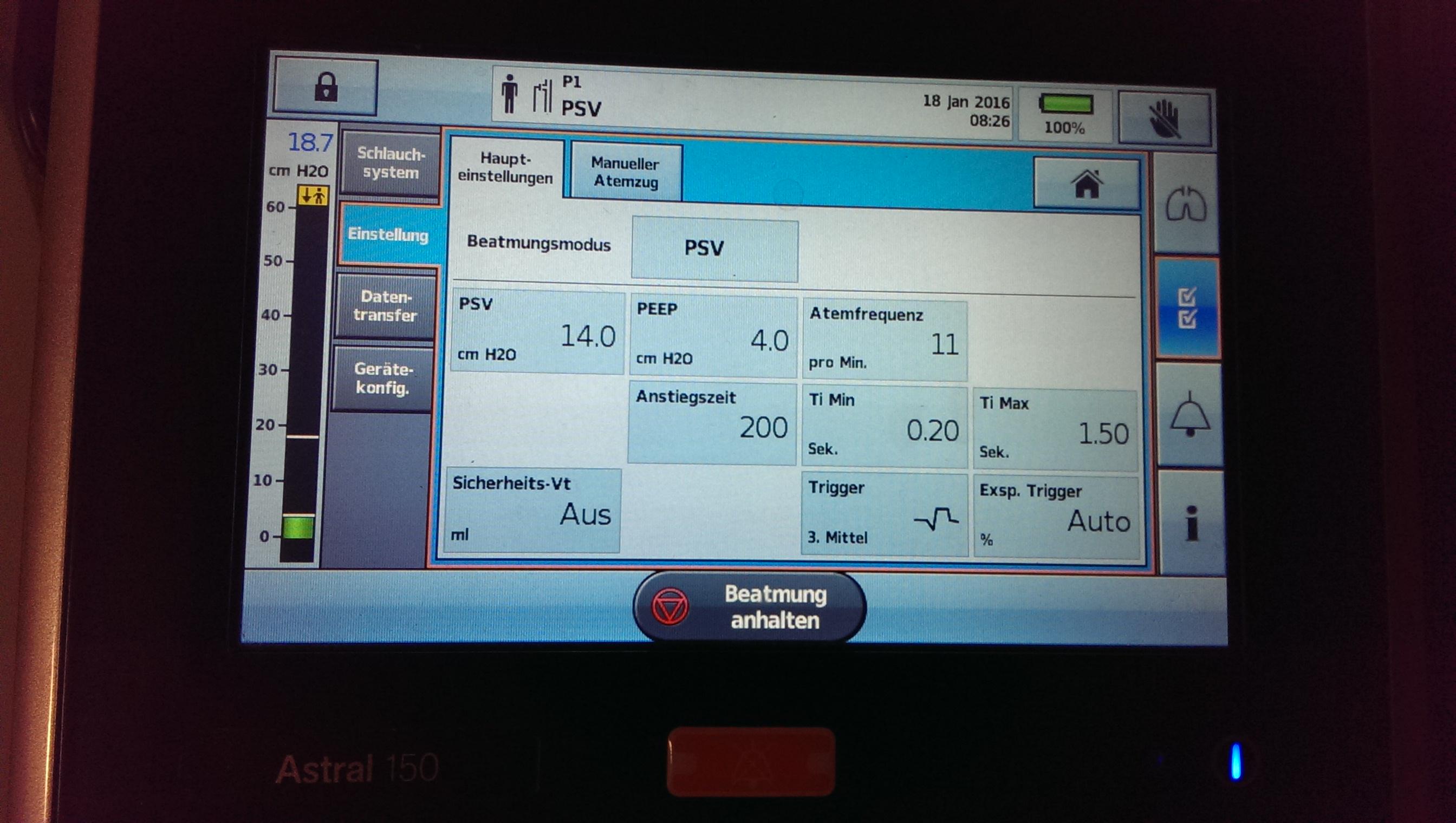 PSV-Atmung an der Astral 150, Fa. ResMed