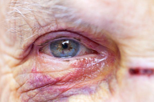 DE: Studie: Gewalt in der Pflege