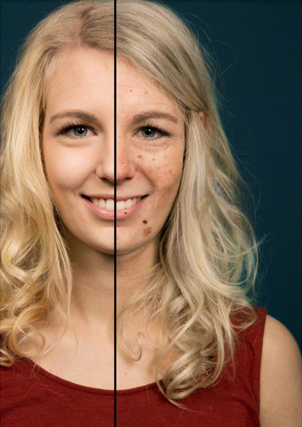 DE: Neue Sunface App: Schock für Solarium- und Sonnenfans Hautklinik verbindet Selfie-Spaß mit Hautkrebsprävention