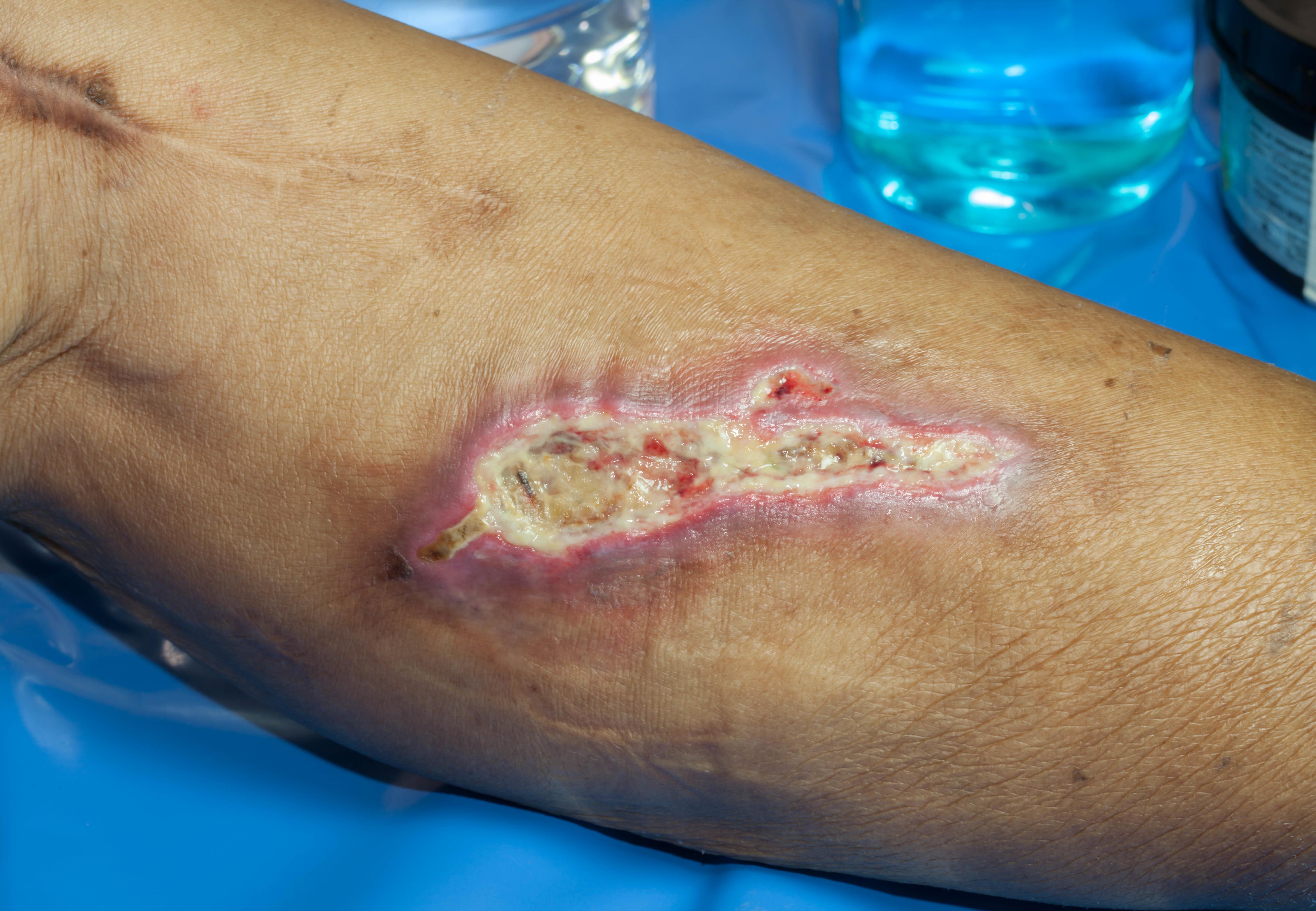 Wunde – Diabetischer Fuß