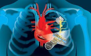 So könnte der Stromgenerator am Herzen aussehen (Grafik: Patricio Sarzosa)