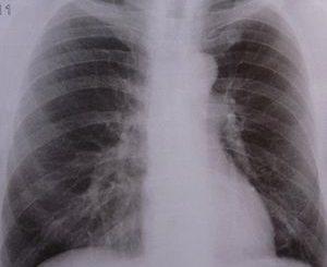 Lunge: Millionen Menschen sterben an TBC (Foto: pixelio.de, Dieter Schütz)