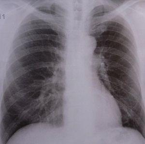 Lunge: Schädigung durch Umweltbelastung (Foto: pixelio.de, Dieter Schütz)