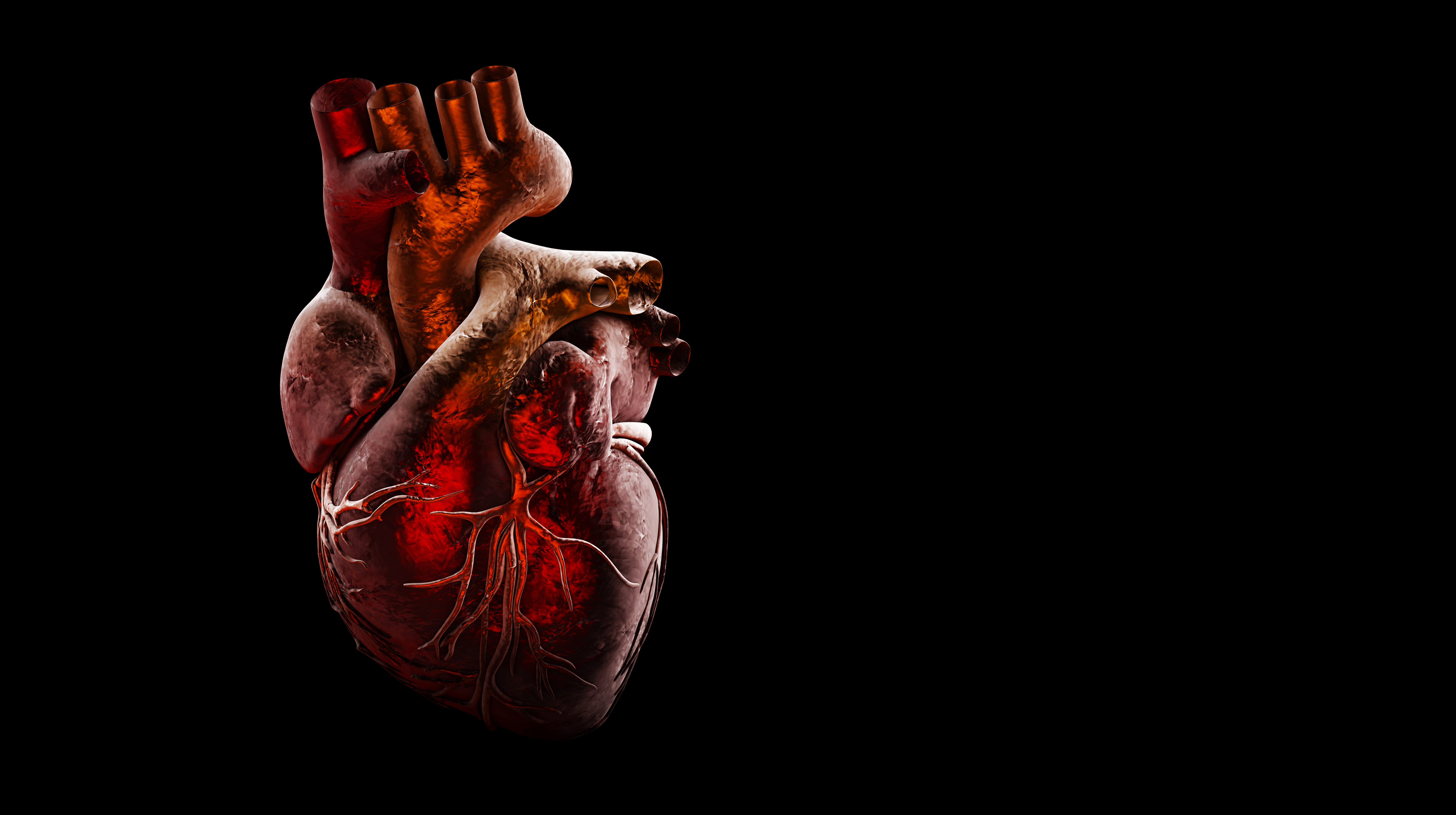 Herz – Infarkt